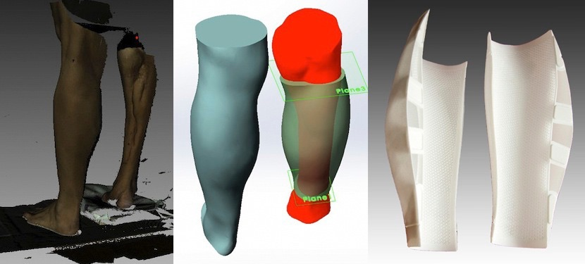 Eva Helps Produce A 3d Printed Prosthesis Of The Gastrocnemius