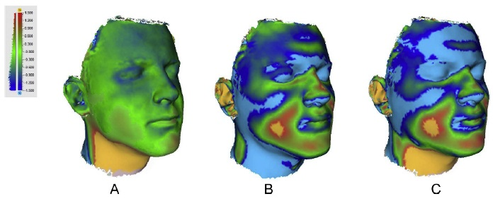 3D face scans analysed by Artec Studio