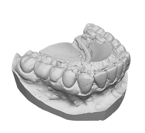 Plaster cast of teeth 3D model