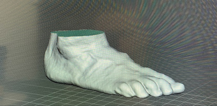 Creating Optimal Orthotics and Prosthetics with Artec Eva and Spider