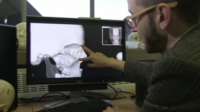 Anatomical 3D visualization: Scanning bones to reconstruct